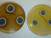 Mold picture- Colonies of Penicillium bilaii