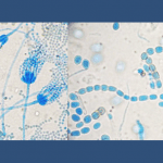 Mold Types commonly Found In Homes and Offices