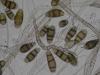 Mold picture- Curvularia
