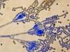 Mold picture- Penicillium Spores In Chains