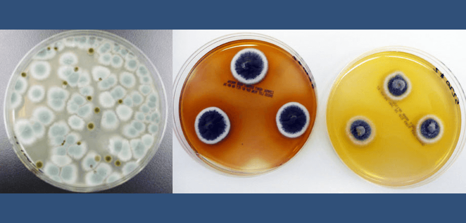 Mold in Home: What You Should Know!