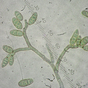 Picture of Ulocladium