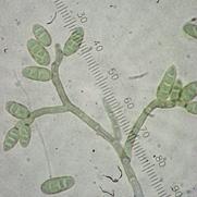 Picture of Ulocladium